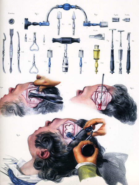 modern eye surgery  a trephineTrepanation Tool